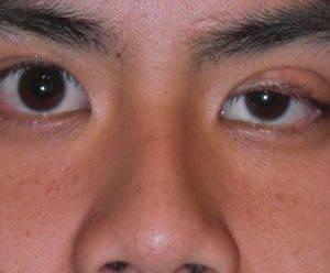 Трудности диагностики миастении и полимиозита