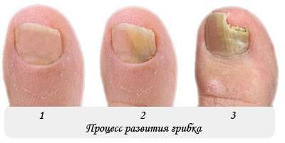 Деформация ногтей – причины, диагностика и лечение
