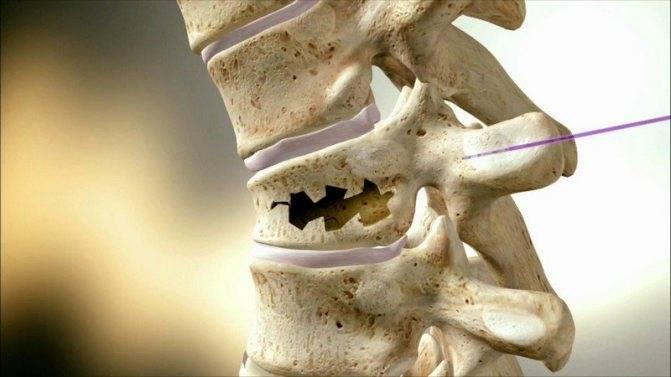 Симптомы и лечение компрессионного перелома позвоночника поясничного отдела