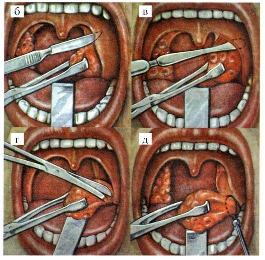 Когда можно чистить зубы после удаления миндалин