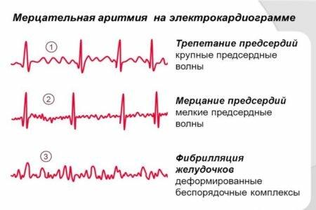 Мерцательная аритмия (фибрилляция предсердий)