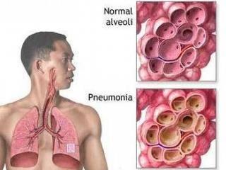 Лечение пневмонии народными средствами: как лечить воспаление легких