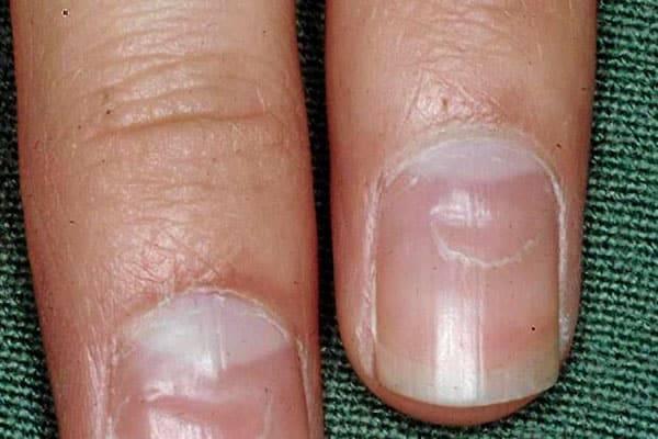 Как определить болезни по ногтям на руках и ногах