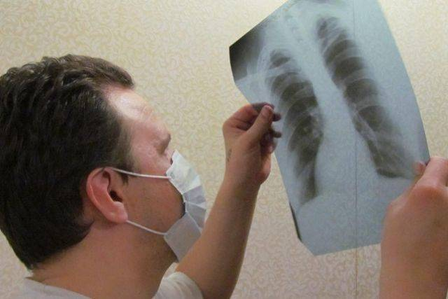 Туберкулез | симптомы | диагностика | лечение - docdoc.ru