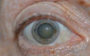 Глазные капли эмокси-оптик