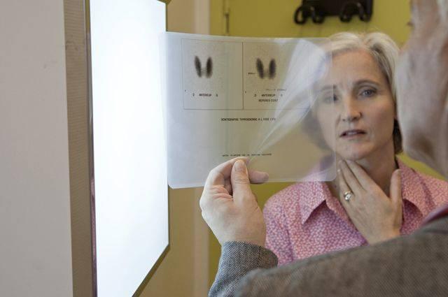 Гипотиреоз у женщин: симптомы, лечение, субклиническая форма