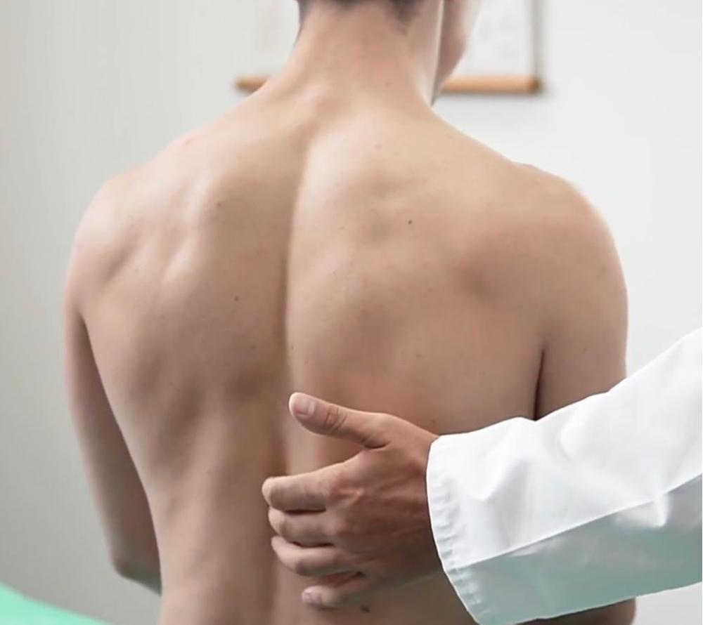 Шейный кифоз: причины, симптомы и лечение