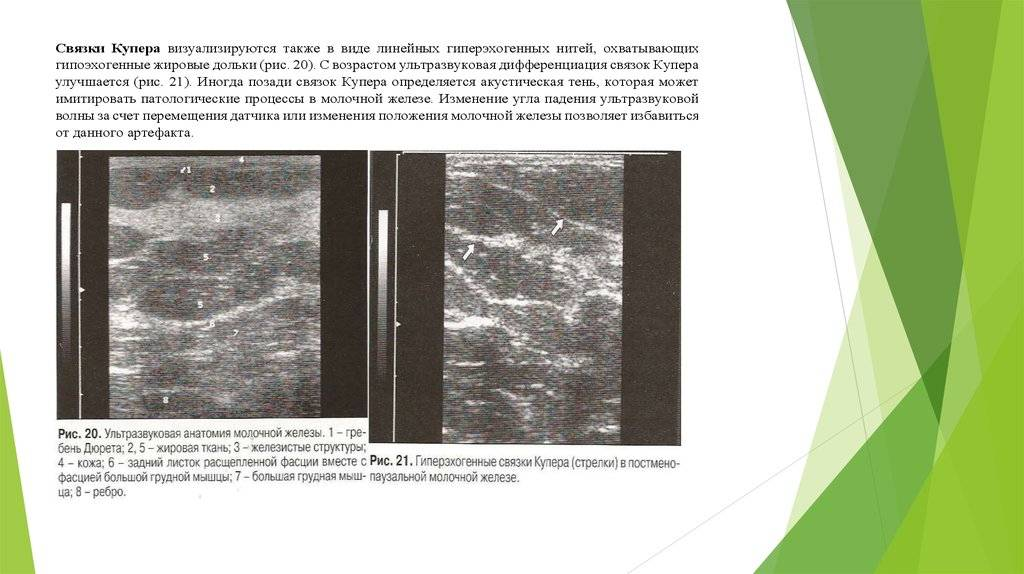Как увеличить железистую ткань молочной железы