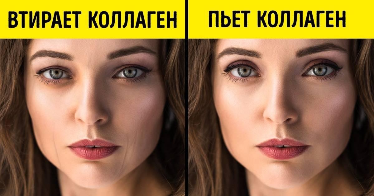 Топ-10 кремов для лица с гиалуроновой кислотой