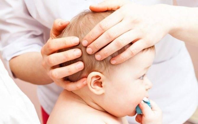 Лечение повышенного внутричерепного давления у детей