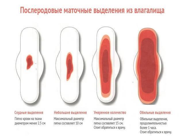 Выделения после кесарева сечения: сколько длятся / mama66.ru