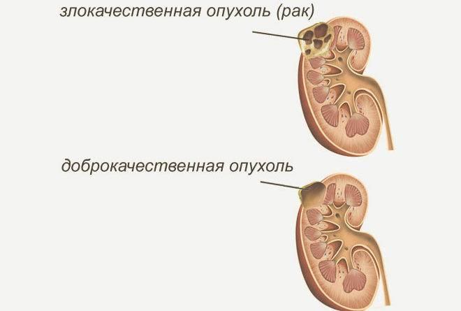 Протеинурия беременных: как справиться с патологией