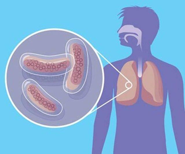 Туберкулез почек: симптомы, признаки, причины, осложнения, последствия, профилактика