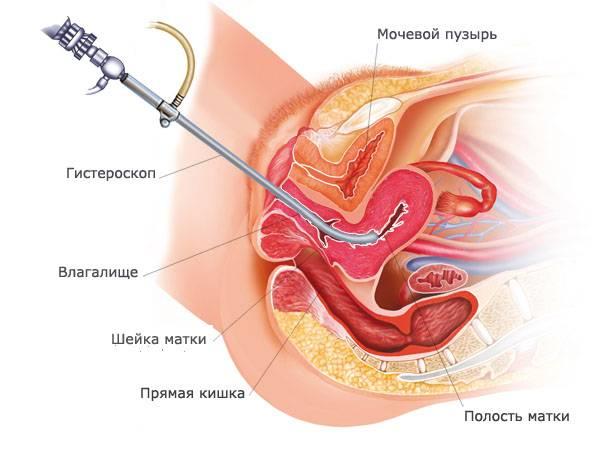 Гистероскопия и лапароскопия одновременно