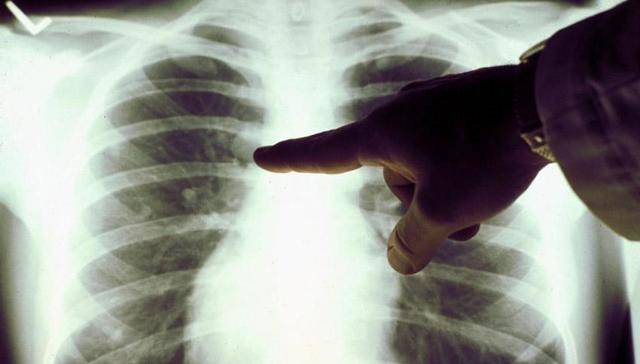 Туберкулез шейного отдела позвоночника у взрослых