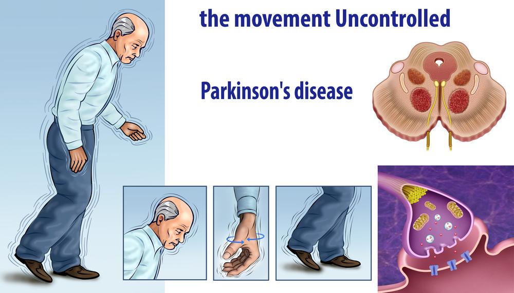 Паркинсонизм и болезнь паркинсона – основные отличия
