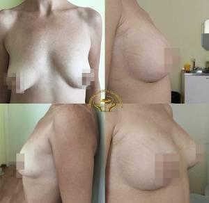 Маммопластика, цена в москве, стоимость операции, фото до и после маммопластики