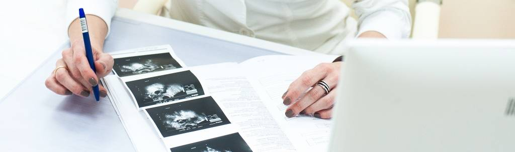 Многокамерная киста яичника: что это, причины, лечение