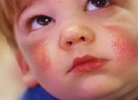 Как лечить диатез у новорожденных на лице. лекарства и народные рецепты