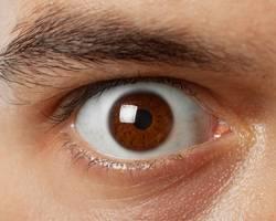 Глаукома. что такое глаукома? причины развития и разновидности глаукомы.