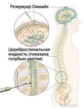 Спинномозговая жидкость — википедия с видео // wiki 2