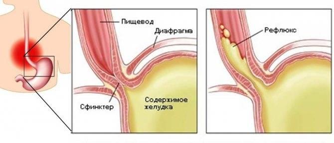 Питание при гастрите желудка и пищевода