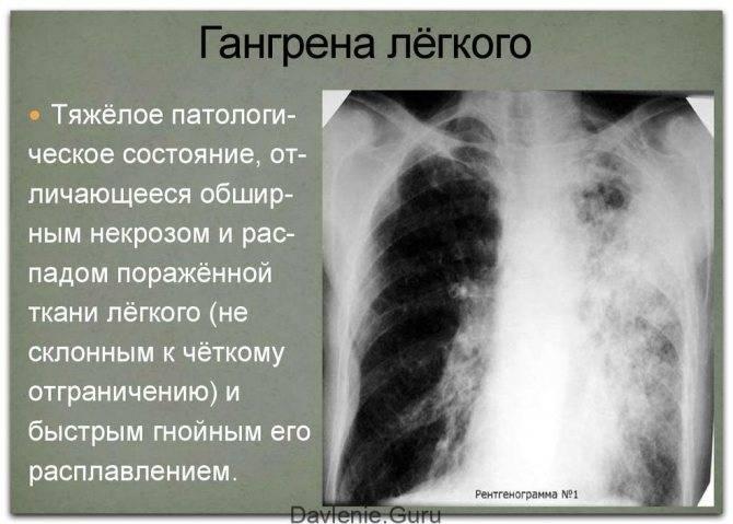 Пневмония простуда