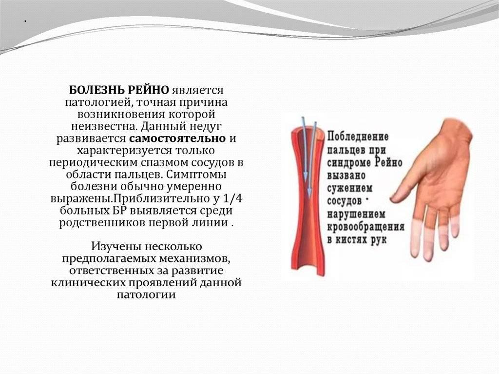 Синдром м. рейно: причины, симптомы, диагностика и лечение
