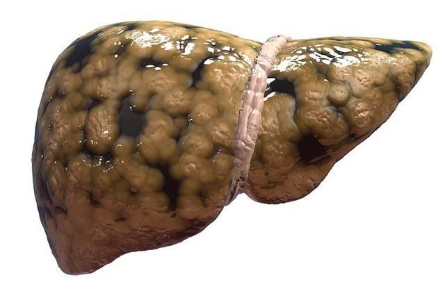 Диета при болезни печени и поджелудочной железы