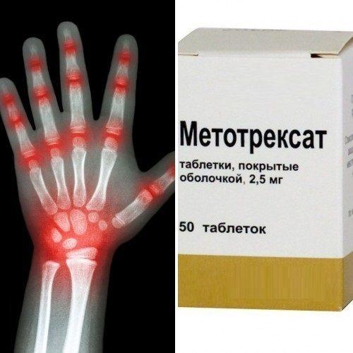 Тофацитиниб