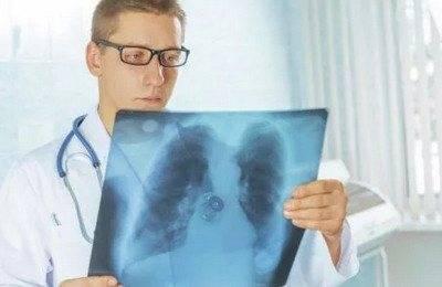 4 стадии развития туберкулёза: симптомы