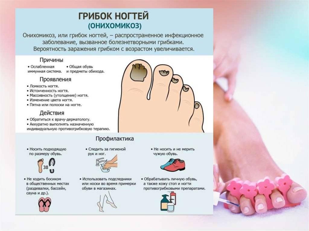 Онихомикоз: причины, симптомы, диагностика, лечение