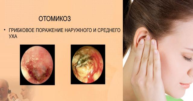 Какие противогрибковые капли в уши лучше для людей