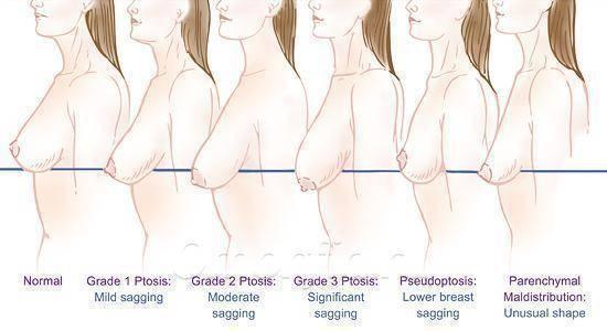 Почему обвисает грудь и что с этим делать