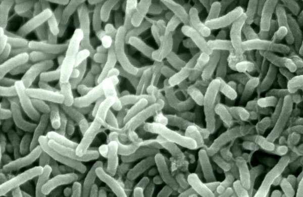 Холера. причины, симптомы и признаки, диагностика и лечение болезни
