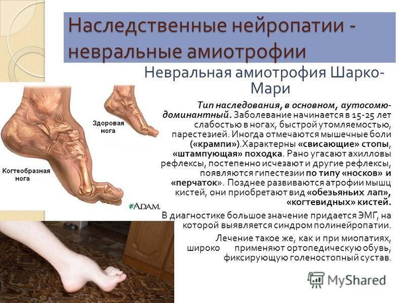 Невральная амиотрофия шарко–мари–тута