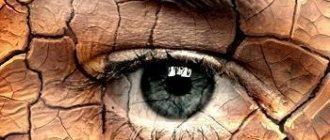 Аналоги глазных капель сигницеф