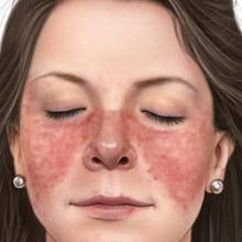 Системная красная волчанка – симптомы, причины и методы лечения