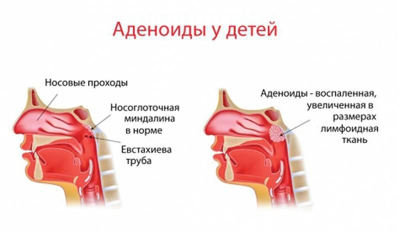 Самые эффективные средства для лечения аденоидов у детей без операции