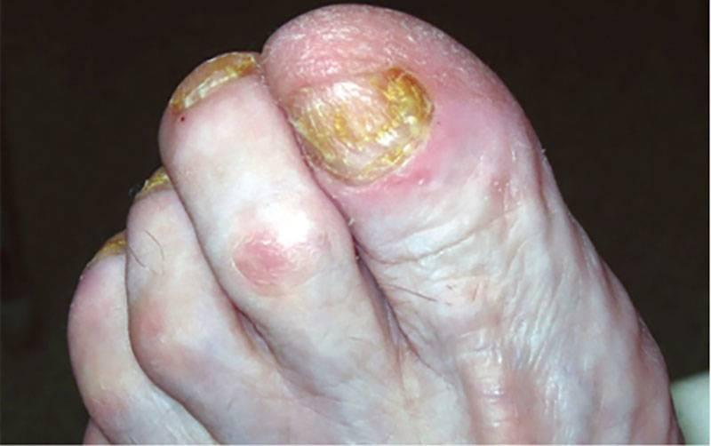Онихомикоз ногтей: симптомы и способы лечения