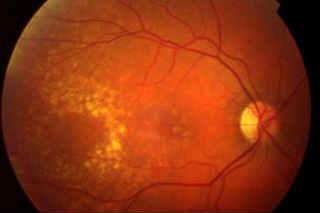 Что такое макулодистрофия сетчатки глаза? лечение современными методами