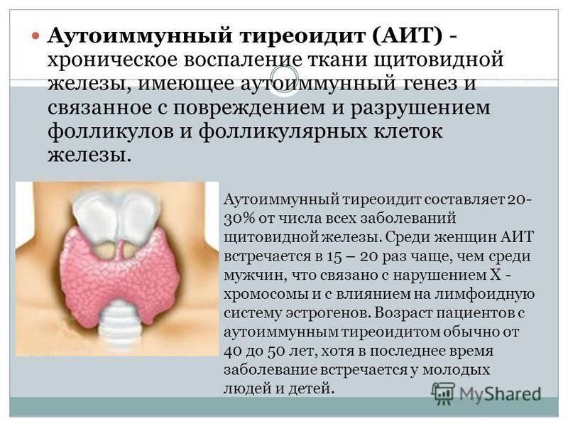 Симптомы и лечение острого тиреоидита