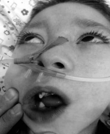 Синдром мак-кьюна-олбрайта
