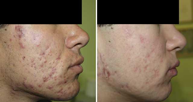 Атерома (эпидермальная киста) кожи лица, уха, головы и др. – причины, виды и симптомы, методы лечения (удаление), цена операции, отзывы, фото