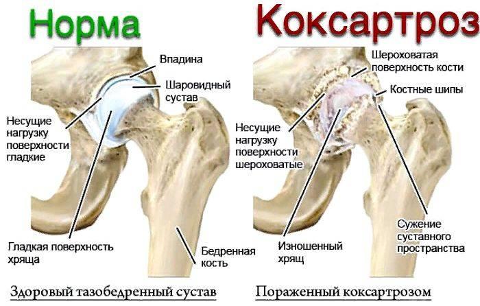Симптомы, степени и лечение коксартроза тазобедренного сустава