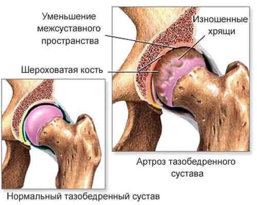 Список разрешенных и запрещенных продуктов при коксартрозе тазобедренного сустава