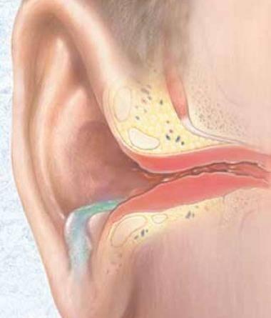 Грибок в ушах: лечение, симптомы, причины отомикоза