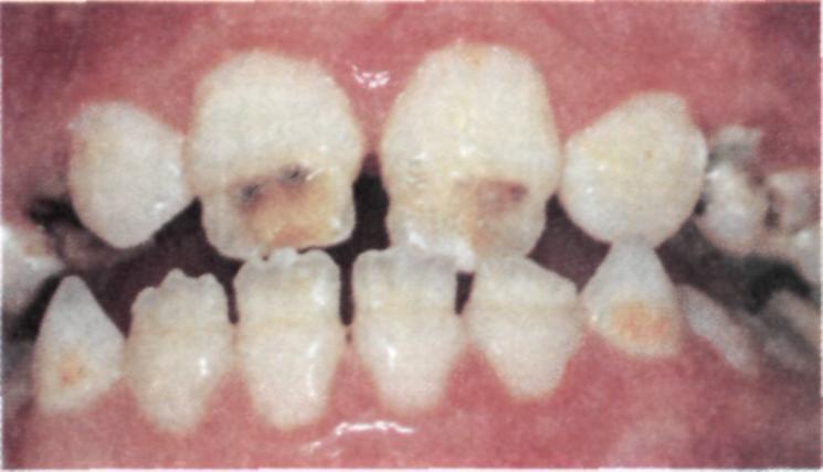 Почему темнеют зубы: причины потемнения эмали, способы отбеливания