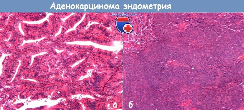 Карцинома (=рак): понятие, формы (плоскоклеточная, папиллярная), локализации, лечение