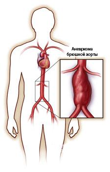 Аневризма брюшной аорты. симптомы, узи, признаки, диагностика, лечение без операции